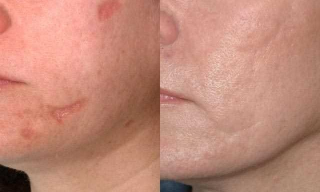 Acne Prevention, Treatment and Correction